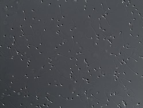 Imagen de espermatozoides