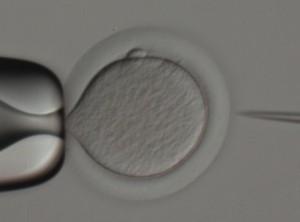 biopsia-corpusculo-polar-1