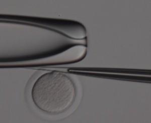 biopsia-corpusculo-polar-3